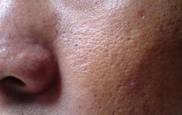Da sạm và xỉn màu, mụn mọc nhiều! Hiểu rõ nguyên nhân, thường xuyên rửa mặt đúng là da mỏng manh, bóng nhẫy