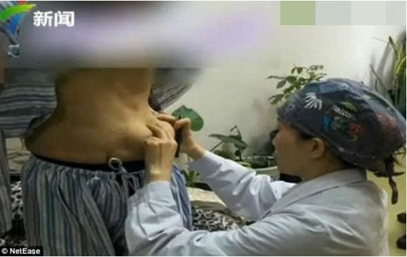 Những hiểm họa sau phẫu thuật nâng ngực khiến ai nhìn cũng khiếp sợ